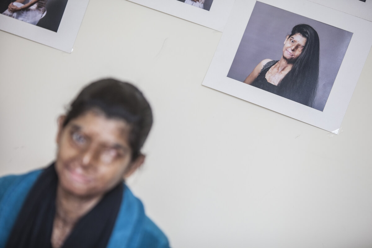 Acid attacks, India 2015