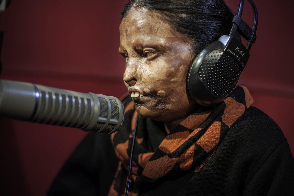 Acid attacks, India 2015